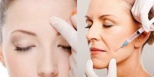 Preenchimento pele